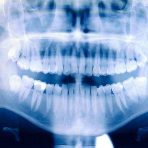 Ortopantomografía en Salteras