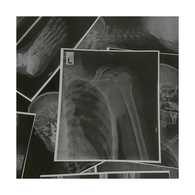 RX GRUPO A (Columna, humero y fémur, abdomen y tórax)