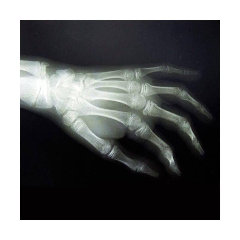 RX GRUPO B (Hombro, codo, muñeca, cadera, rodilla, tobillo, clavícula, cubito y radio)