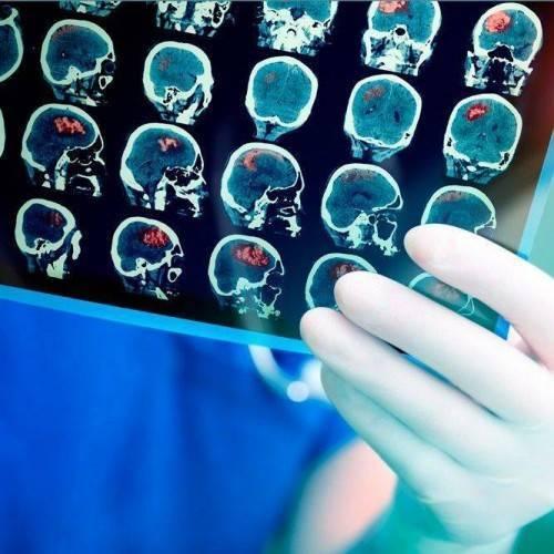 Electroencefalograma en Tomelloso