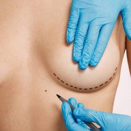 Consulta Cirugía Estética en Madrid