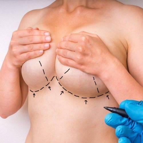 Consulta Cirugía Plastica en Madrid