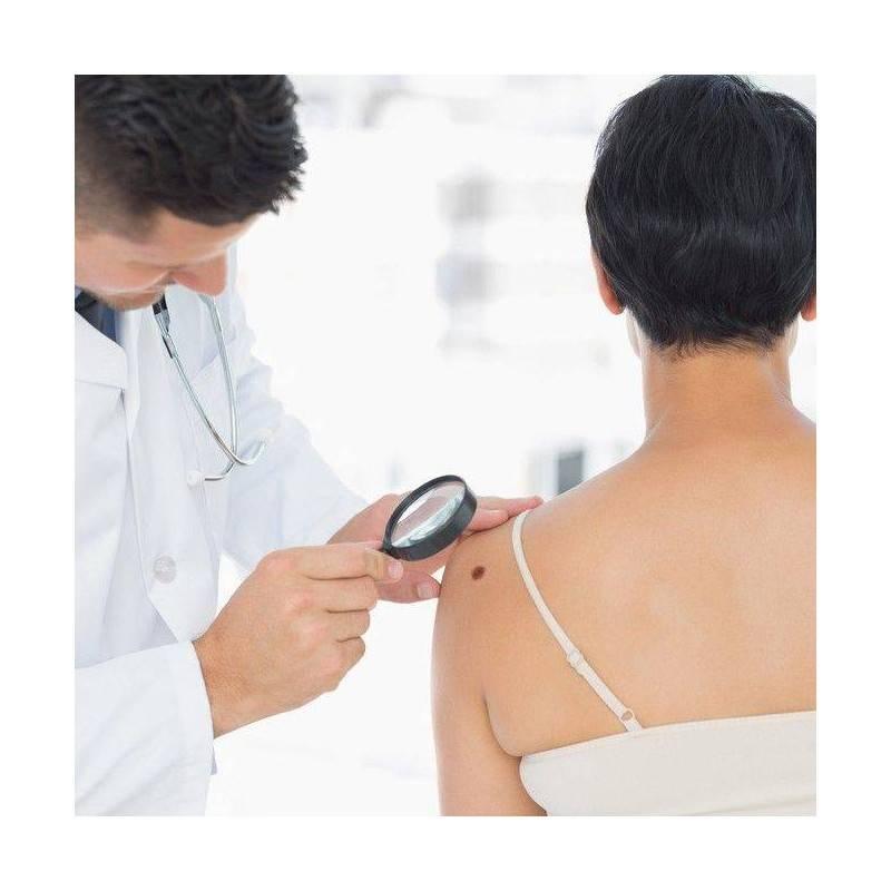 Consulta Dermatología y Crioterapia (eliminación de verrugas)