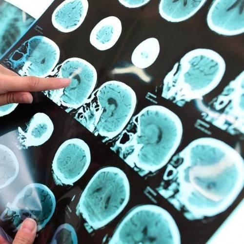 Consulta Cirugía Vascular y Eco Doppler en Castelldefels