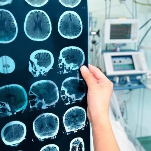 Electroencefalograma en Castelldefels
