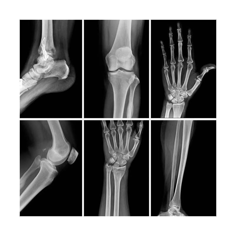 RX GRUPO B (Hombro, codo, muñeca, cadera, rodilla, tobillo, clavícula, cubito y radio, mano, tibia y peroné, pie)