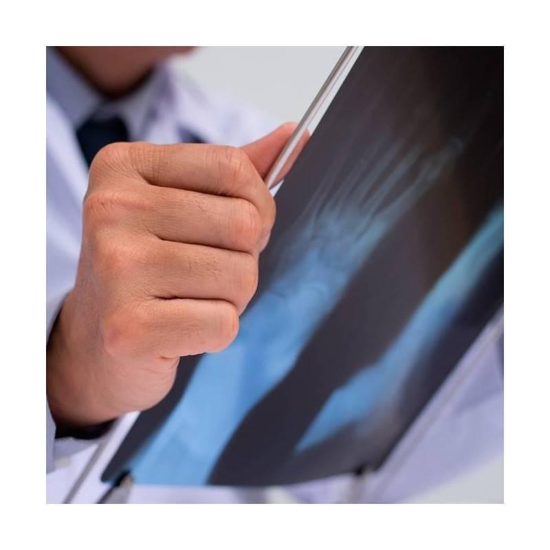 Consulta Traumatología y Radiología simple.