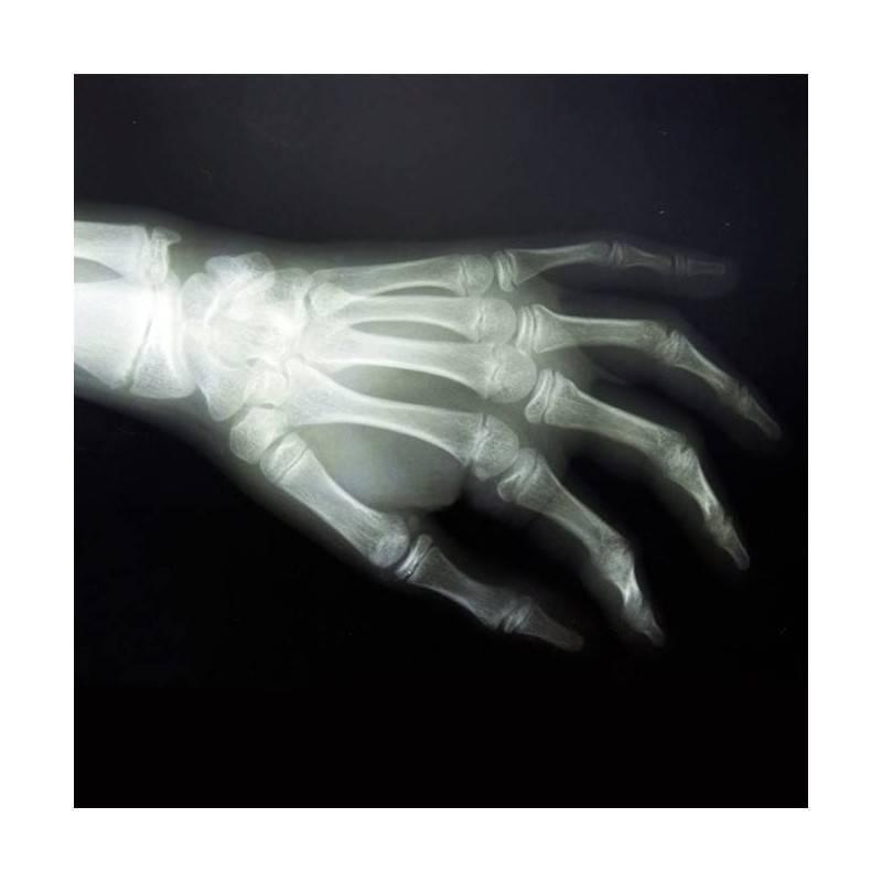 RX GRUPO B) Resto, Articulaciones (hombro, codo, muñeca, cadera, rodilla, tobillo) y zonas pequeñas ( clavícula, cubito y radio