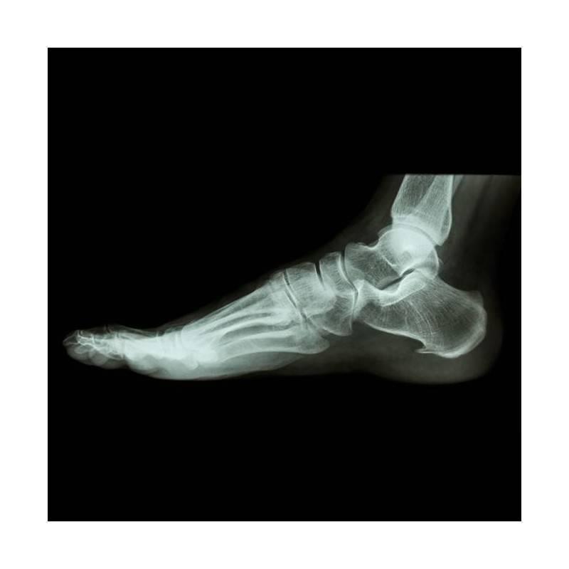 RX GRUPO B)  Resto: Articulaciones (hombro, codo, muñeca, cadera, rodilla, tobillo) y zonas pequeñas ( clavícula, cubito y radio
