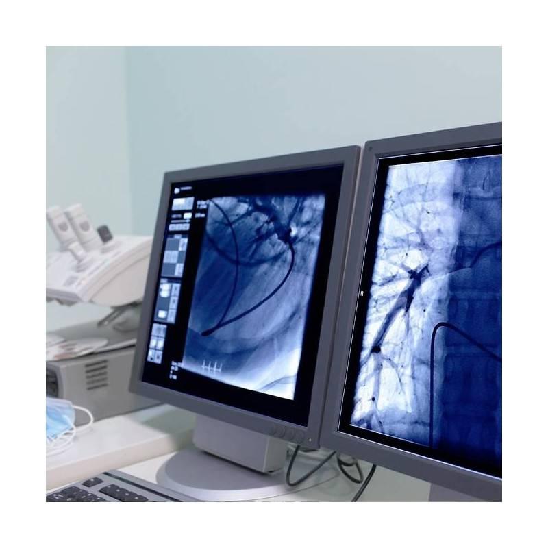 Consulta de Cardiología y Holter ECG