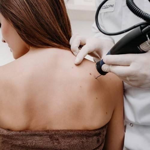 Consulta Dermatología en Molina de segura