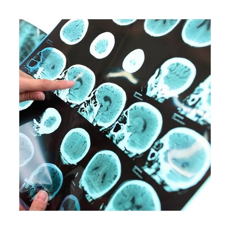 Eco-Doppler Arterial EESS o EEII