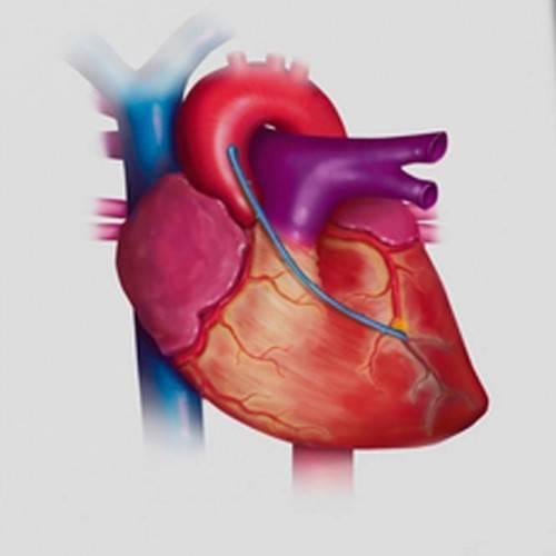 Ecocardiograma y Doppler Color en Granollers