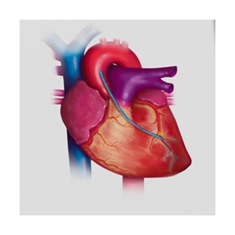 Ecocardiograma y Doppler Color