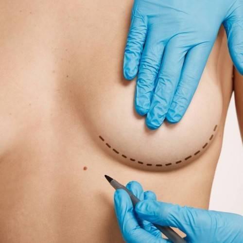 Consulta Cirugía Estética en Arroyomolinos
