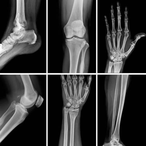 Resonancia Magnética Abierta Dos Zonas Anatómicas en Zamora