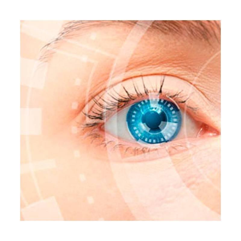 OCT Tomografía de Coherencia Óptica MANRESA