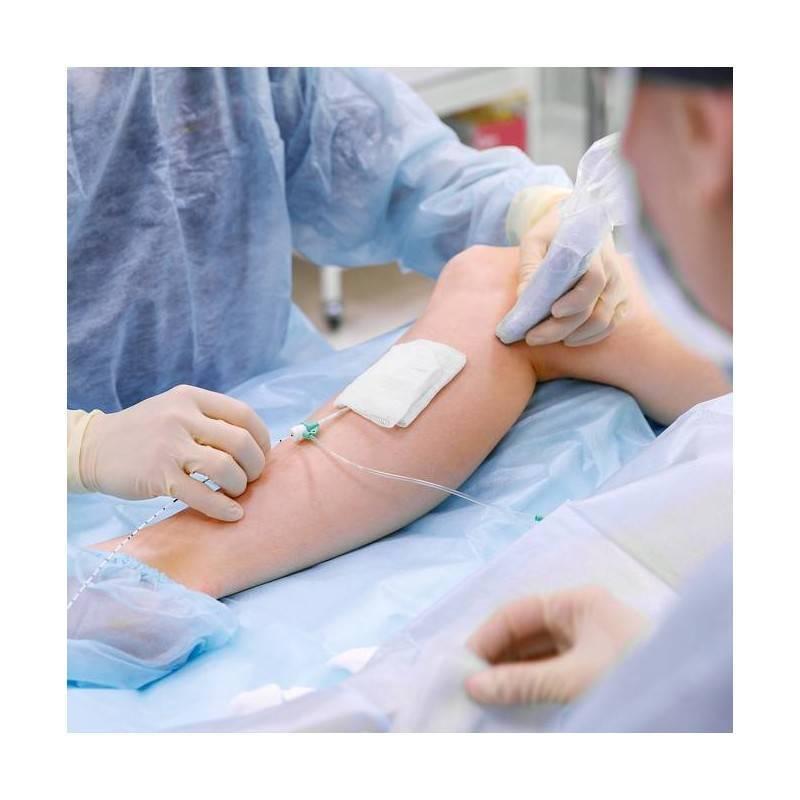 Consulta Cirugía Vascular y Eco Doppler en Igualada