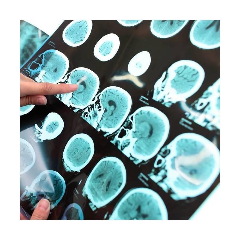 Eco-Doppler Arterial en Denia