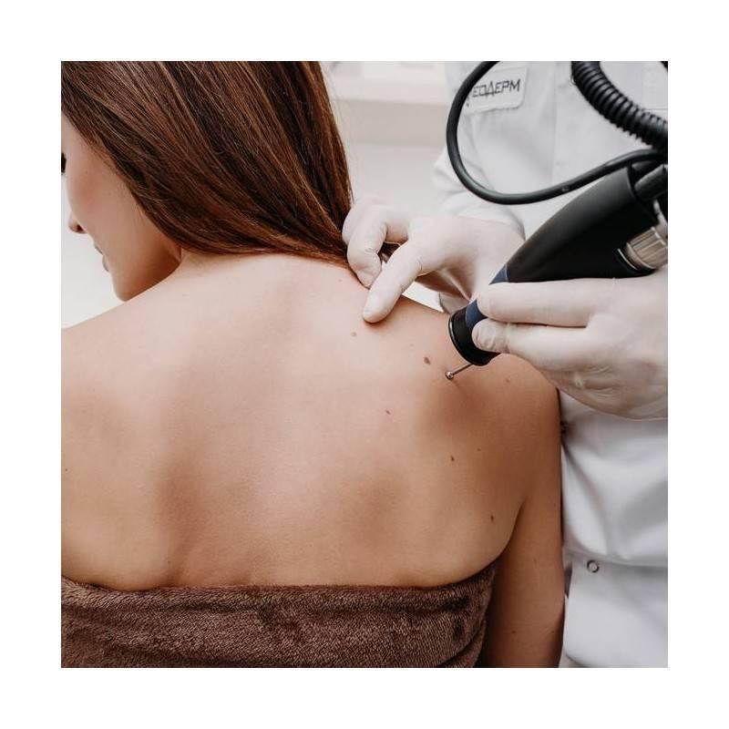 Consulta Dermatología en Algeciras