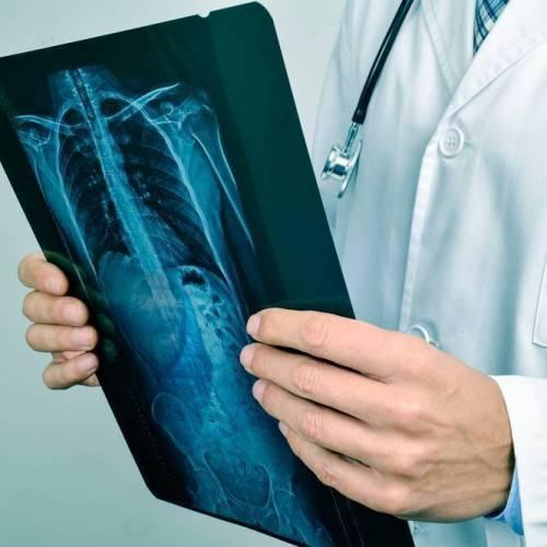 Consulta Neumología y Rx Tórax en Elche