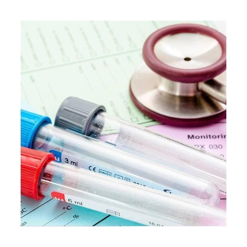 Analítica tiroides en Iscar