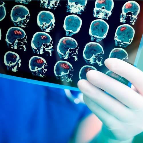 Electroencefalograma en Murcia
