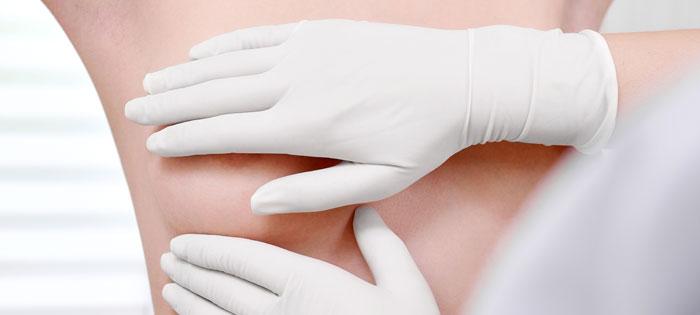 prevenir el cancer de mama - detectar un tumor de pecho