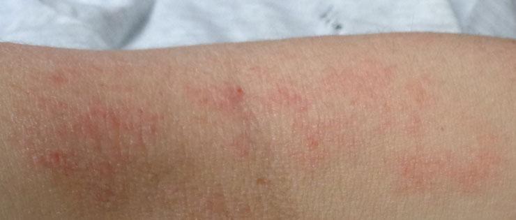 dermatitis atópica - piel con eccemas