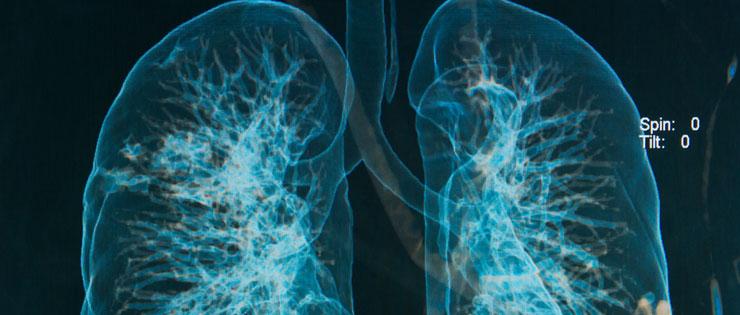 síntomas de embolia pulmonar